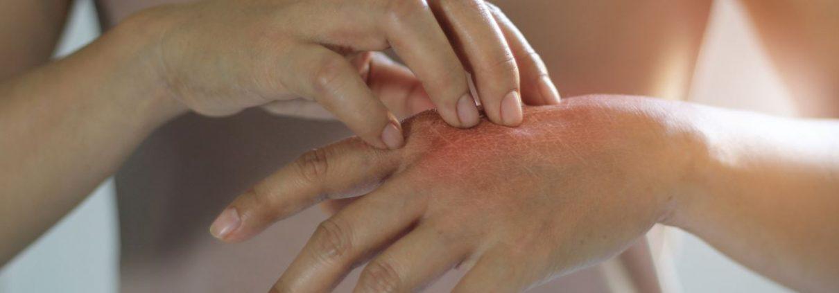 száraz kéz